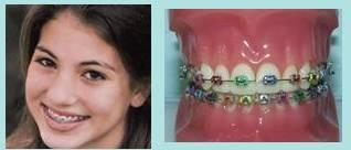 bracket gigi dari metal