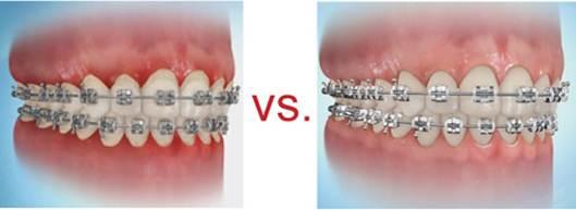 Cara Menyikat Gigi untuk Pemakai Behel / Kawat Gigi