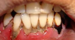 Perawatan Kerusakan Gigi & Gigi Goyang