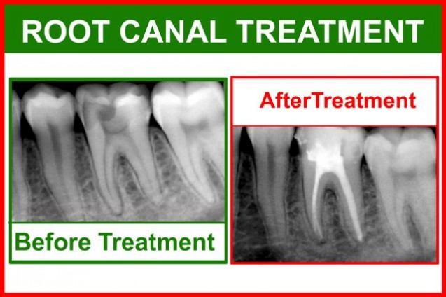 Perawatan Saluran Akar / Root Canal Treatment