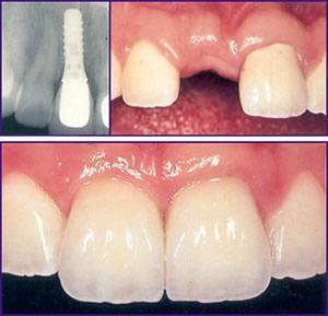 Perawatan bedah mulut