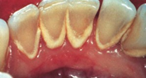 Scaling (pembersihan karang gigi) & polishing