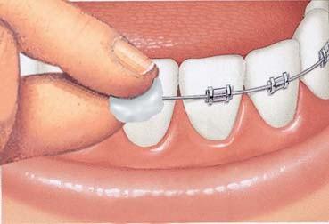 Perawatan Ortodonti / Merapikan Gigi