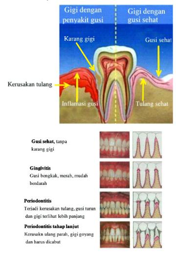 Pembersihan karang gigi / scaling-perlukah? Bagaimana prosedurnya?