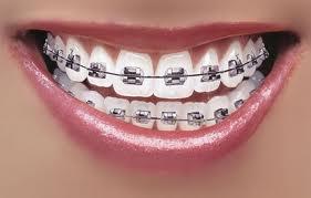 pasang behel di spesialis ortodonti