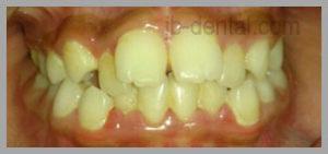 pasien dengan gigi berjejal