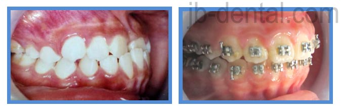 gigi cameh