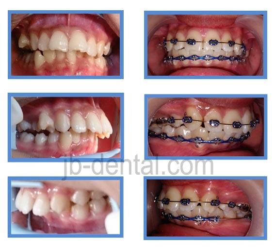 gigi-depan-maju-protrusive