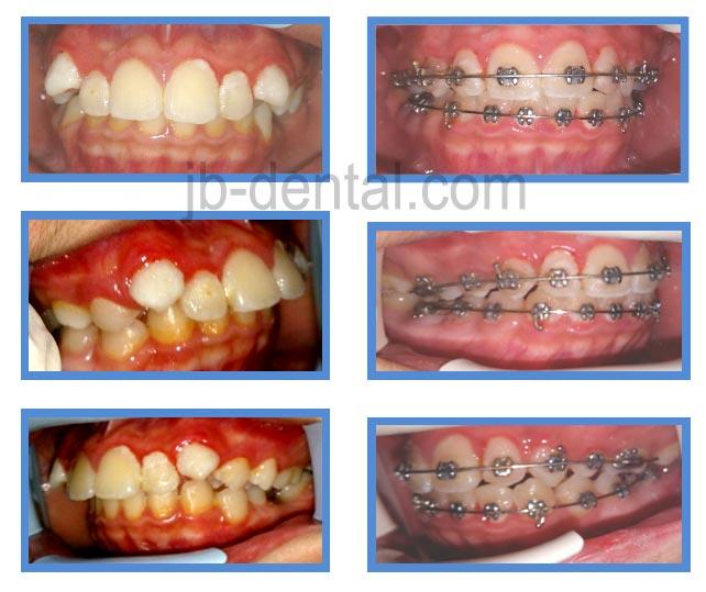 protrusive gigi depan maju