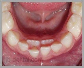 Mengapa Gigi Saya Berjejal?
