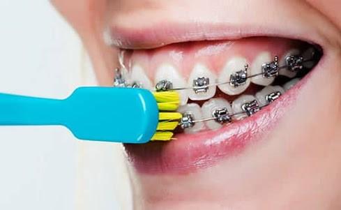 cara sikat gigi buat pasien behel kawat gigi