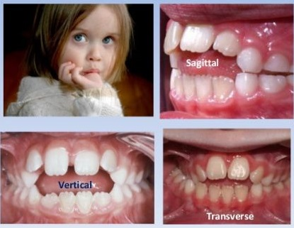 Mengisap jari menimbulkan kelainan dalam arah sagital ( overjet/ jarak horizontal gigi atas terhadap bawah besar) , arah vertikal (gigitan depan terbuka/ anterior openbite), dan arah transversal ( crossbite posterior/ gigitan silang gigi belakang)