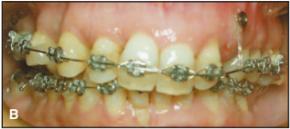 Mini screw dipasang di rahang atas bagian kiri pasien