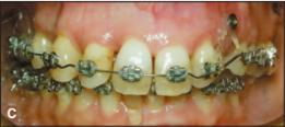 Kemajuan perawatan terlihat batas bawah gigi-gigi depan rahang atas sudah terlihat lurus.
