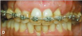 Hasil akhir perawatan dengan mini screw yang telah dilepas. Batas bawah sudah terlihat lurus dan garis tengah gigi sudah berada di posisi yang sesuai.