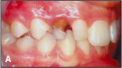 Kondisi awal gigi taring tidak ada terlihat, tetapi gigi susu (gigi yang berwarna kecoklatan belum tanggal, padahal seharusnya sudah) masih ada