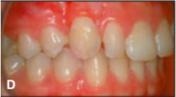 Hasil akhir perawatan, behel dan miniscrew telah dilepas, gigi taring sudah menempati posisi yang seharusnya.