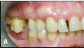 Kondisi awal terlihat gigi geraham rahang atas turun sampai permukaan akar yang seharusnya didalam gusi terlihat