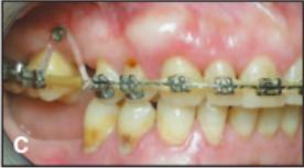 Perawatan sudah berjalan, mini screw sudah dipasang dan terlihat gigi geraham sudah tertarik masuk ke dalam gusi