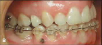 Hasil perawatan gigi depan rahang bawah sudah berada di posisi seharusnya, yaitu dibelakang gigi depan rahang atas